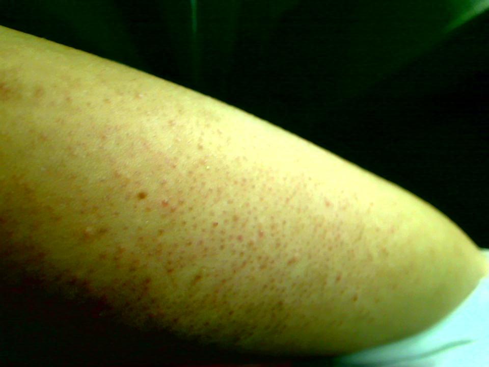 j 39 ai des boutons sur les bras et jambes acn psoriasis et probl mes de peau forum sant. Black Bedroom Furniture Sets. Home Design Ideas