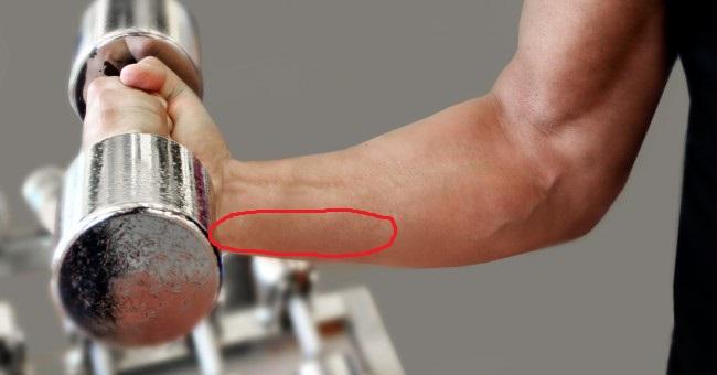 Douleur qui irradie l avant bras sur le forum Musculation ... 147d3bb2fb1