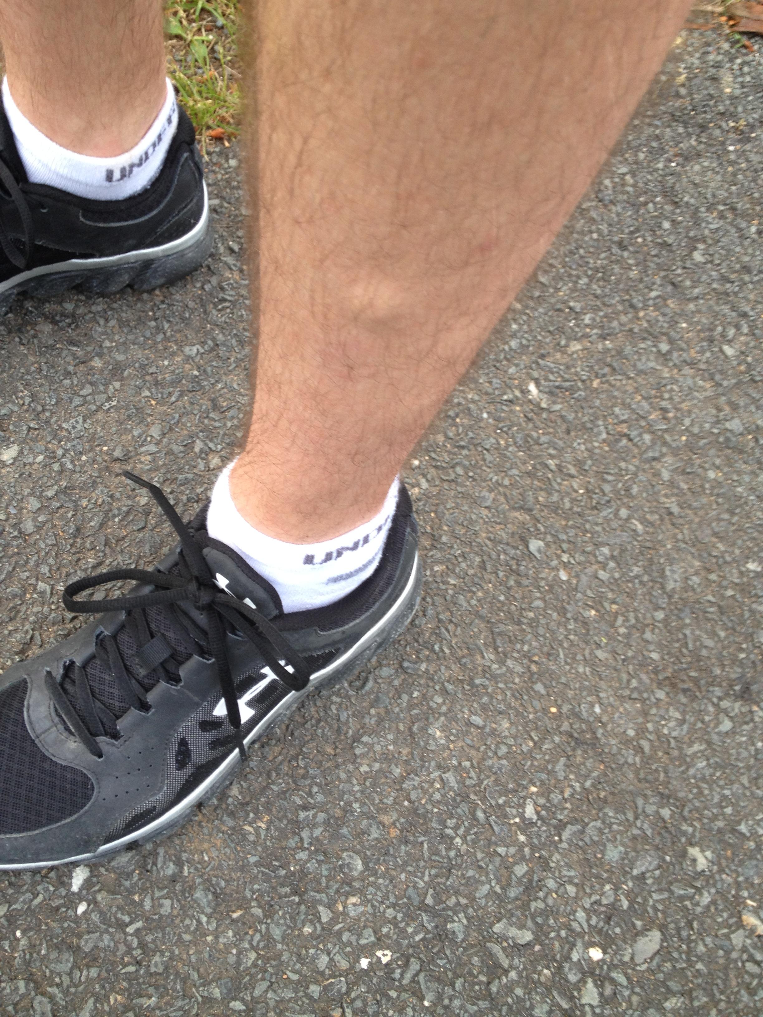 La varice variqueuse sur les pieds les symptômes chez les hommes
