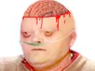Sticker risitas cancer chauve calvicie zombie sang cerveau