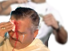 Sticker hendek agression blessure danger alerte mort sang