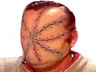 Sticker risitas cicatrices bizarre