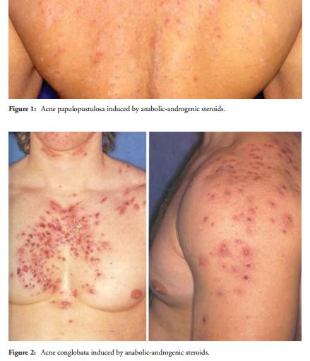 ETUDES] Stéroïdes anabolisants et acné sur le forum ...