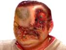 Sticker risitas creepy tumeur bizarre immonde affreux issou bordel difforme eussou