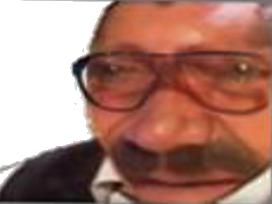 Sticker risitas globule lunettes faceapp debile idiot deforme blobfish monstre vieux