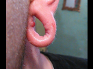 Grosse lésion (Oui c'est ma faute ! ) - Forum Tatouage et Piercing