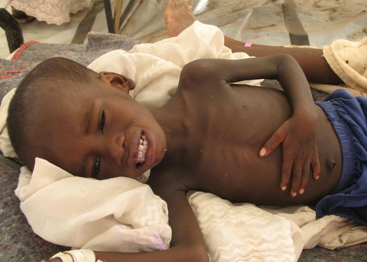 petit africain qui meurt de faim