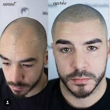 Calvitie Marre D Etre Chauve Je Teste La Micropigmentation Sur